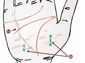 中医穴位保健:观察手部了解肝病情况