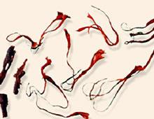 活血化瘀药――西红花