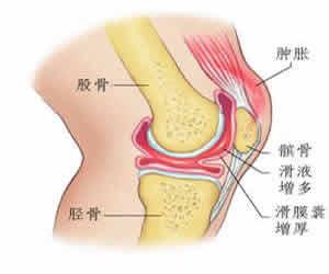 李可:膝关节积液的四种治法